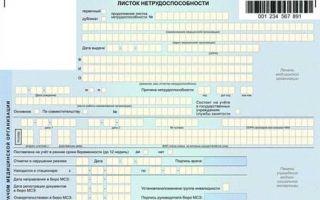 Согласие на выдачу электронного листка нетрудоспособности в 2020 году — образец, бланк, скачать, заполнения, пример