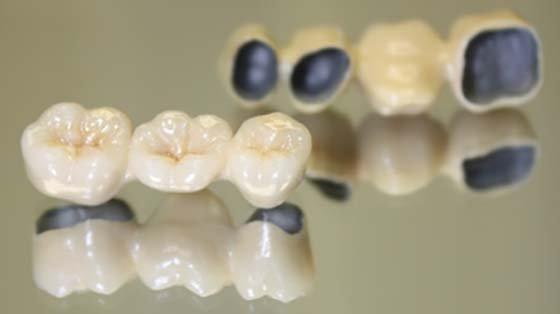 Компенсация за протезирование зубов в 2020 году - неработающим пенсионерам, образец, скачать, бланк, заполненный, заявление